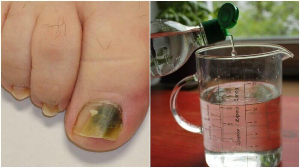 Receita à base de álcool e ingredientes naturais para eliminar os fungos nas unhas
