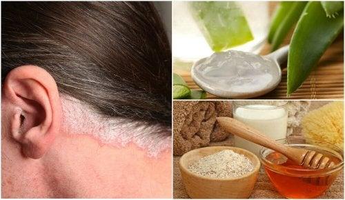 5 remédios caseiros para a psoríase no couro cabeludo
