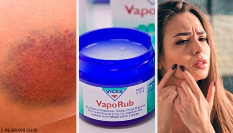 11 usos desconhecidos do Vick Vaporub