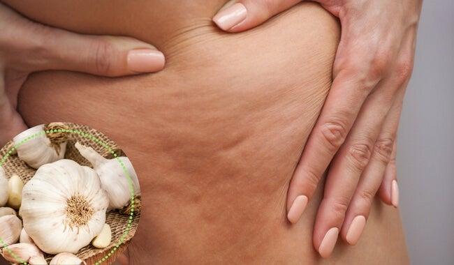 5 alternativas para combater a celulite
