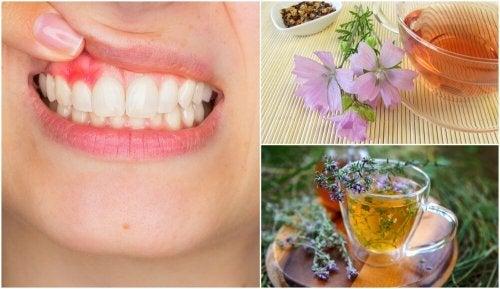 5 soluções naturais para controlar os sintomas da gengivite