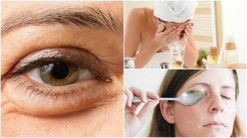 6 métodos naturais para reduzir as bolsas debaixo dos olhos