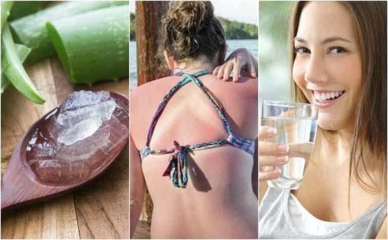9 medidas de emergência para tratar as queimaduras de sol
