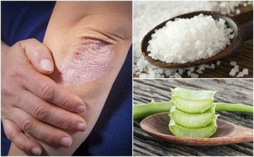 Como combater os fungos na pele com 5 soluções naturais