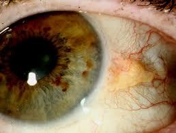 Tumor da córnea