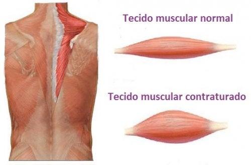 Foto de contratura muscular