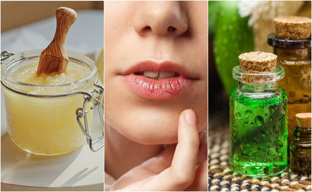 Como prevenir e tratar lábios rachados