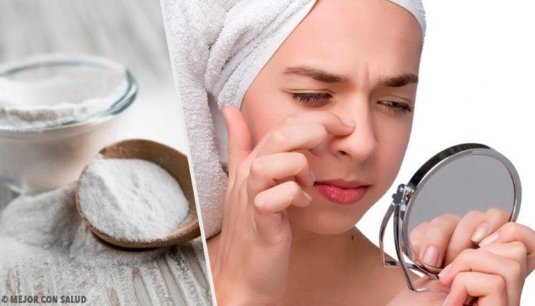 4 máscaras com bicarbonato de sódio para remover cravos