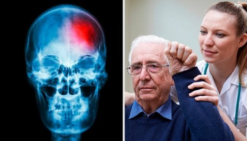 O que é um mini-derrame cerebral? Chaves para detectá-lo