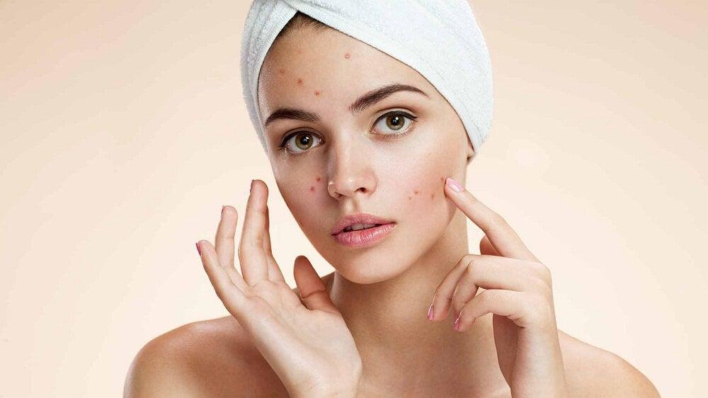 Pele do rosto com acne