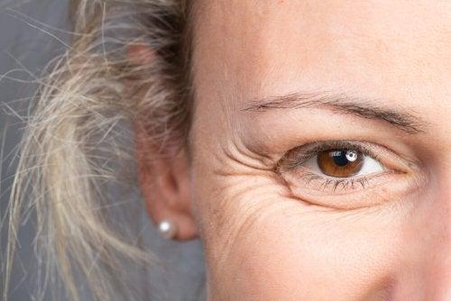 Rugas faciais nos olhos