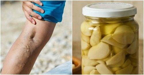 Remédio caseiro de alho e laranja para tratar as varizes