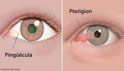 Tumores da córnea: pinguécula e pterígio