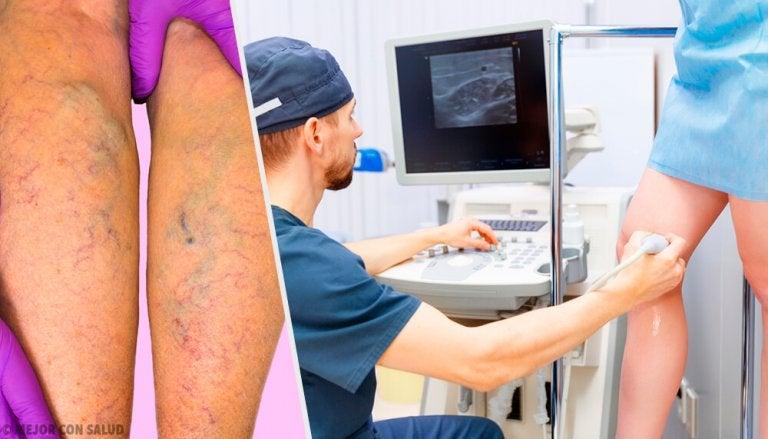 Tratamento tópico e oral para prevenir e tratar as varizes