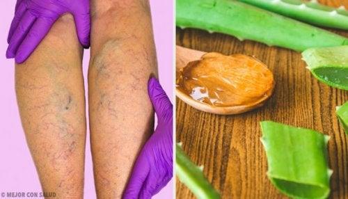 Remédio de aloe vera para as varizes
