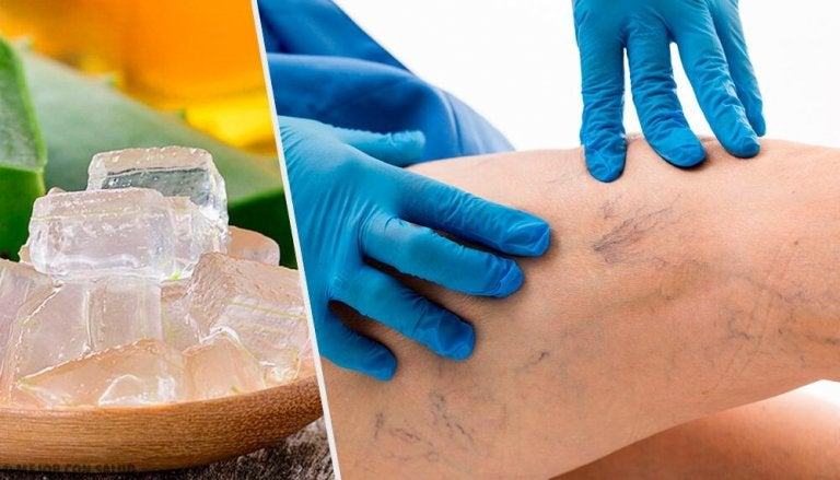 5 alternativas para tratar varizes