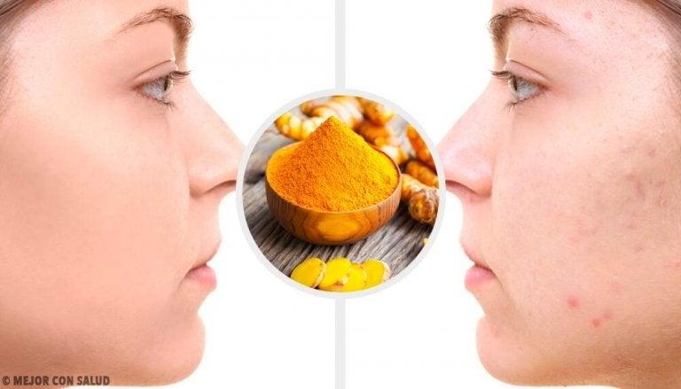 5 máscaras com cúrcuma para eliminar cicatrizes de acne