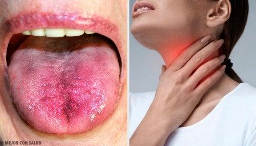 6 formas de saber se há placas na garganta