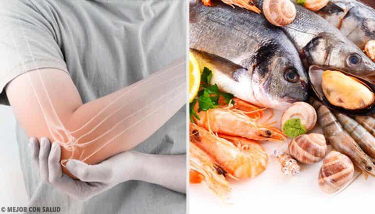 Comer peixe gera menos dor pela artrite reumatoide?