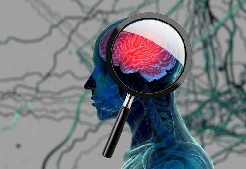 Área do cérebro afetara pelo Alzheimer