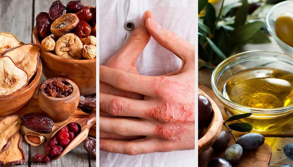 Eczema da pele: causas, sintomas, diagnóstico e tratamento natural