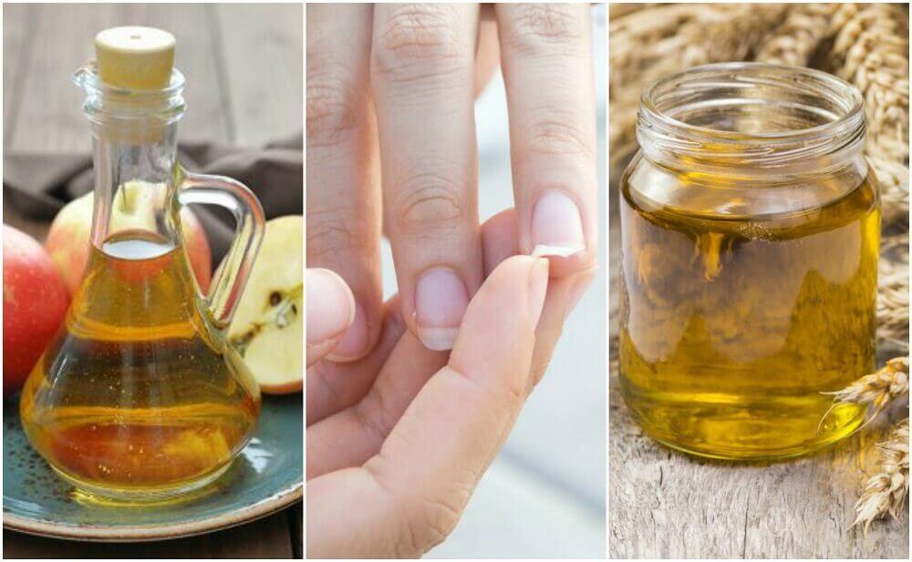 Fortaleça as unhas frágeis com estes 5 remédios caseiros
