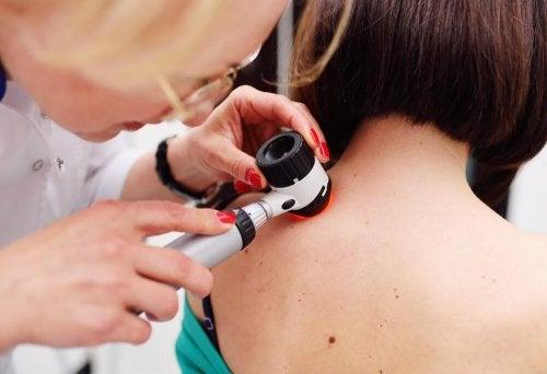O melanoma é o único tipo grave de câncer de pele?
