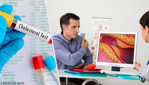 Nível ideal de colesterol: quando devemos nos preocupar?
