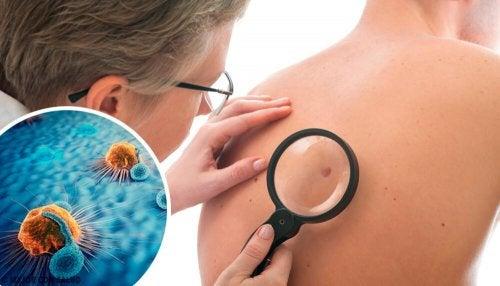 Quais são os sinais de alerta de câncer de pele e como agir?