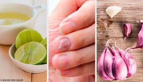 Remédios caseiros para os fungos nas unhas