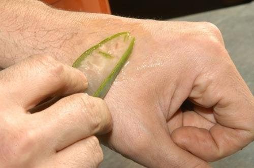 Aloe vera para tratar queimaduras