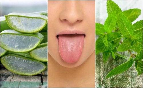 6 tratamentos de origem natural para aliviar as aftas na língua