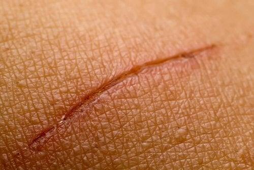 Corte na pele