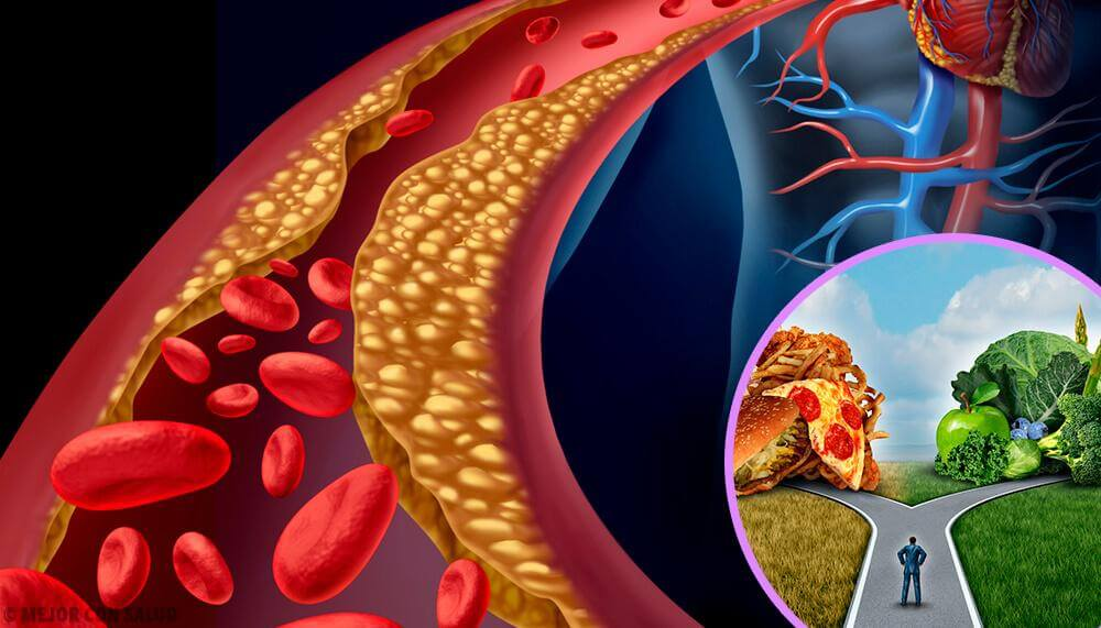 Nivel de colesterol