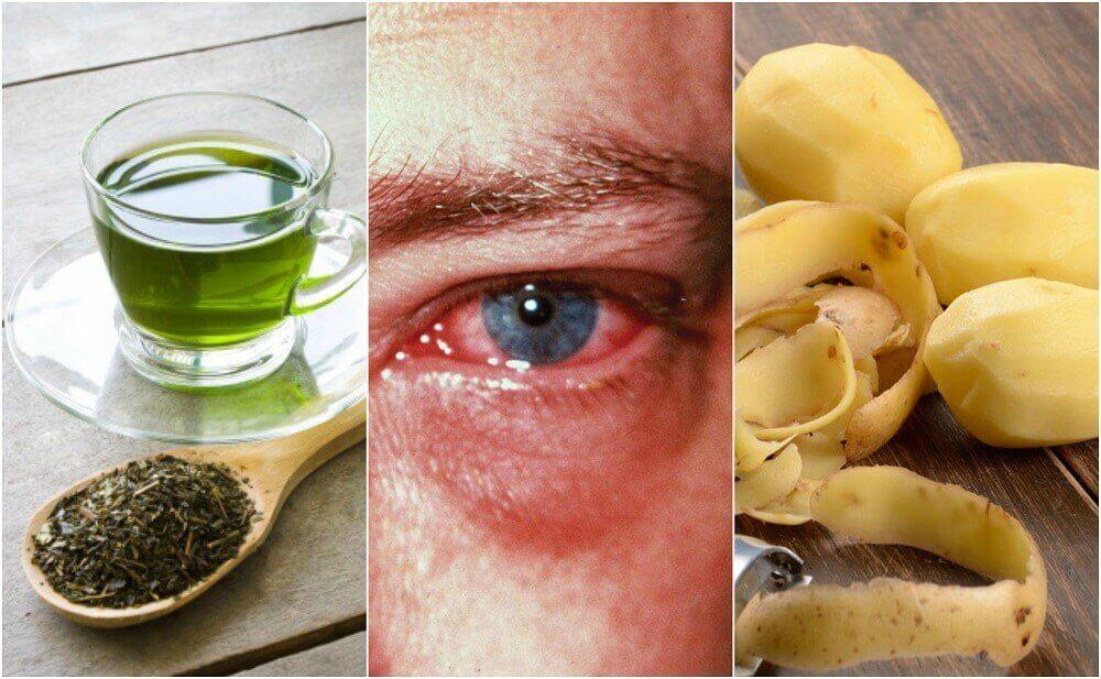 As 8 melhores dicas caseiras para curar a conjuntivite