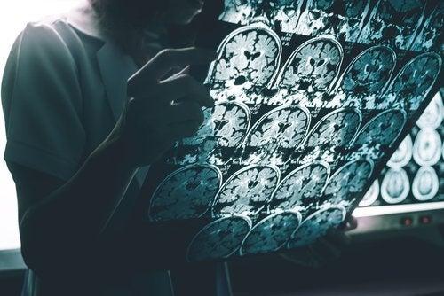 Imagem da doença de Alzheimer