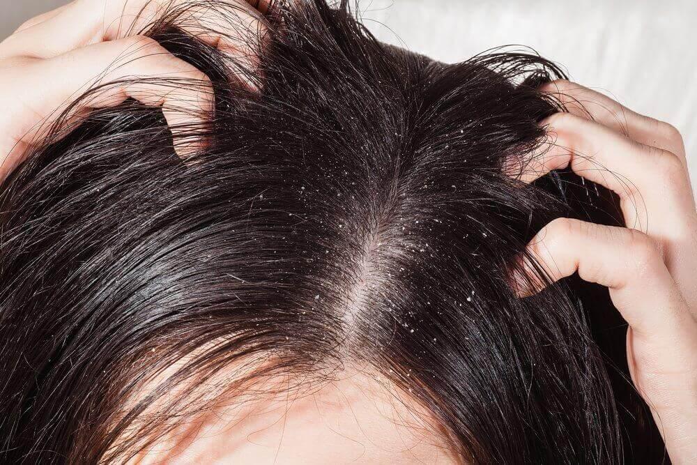 Caspa e coceira no couro cabeludo