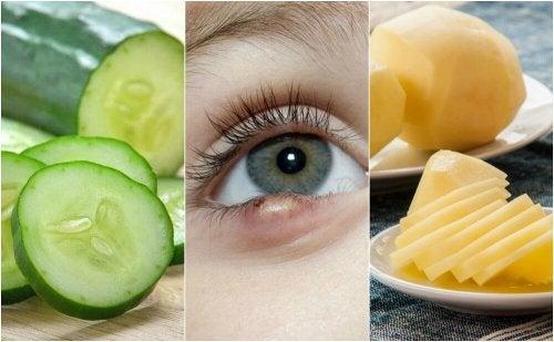 5 soluções de origem natural para curar terçol