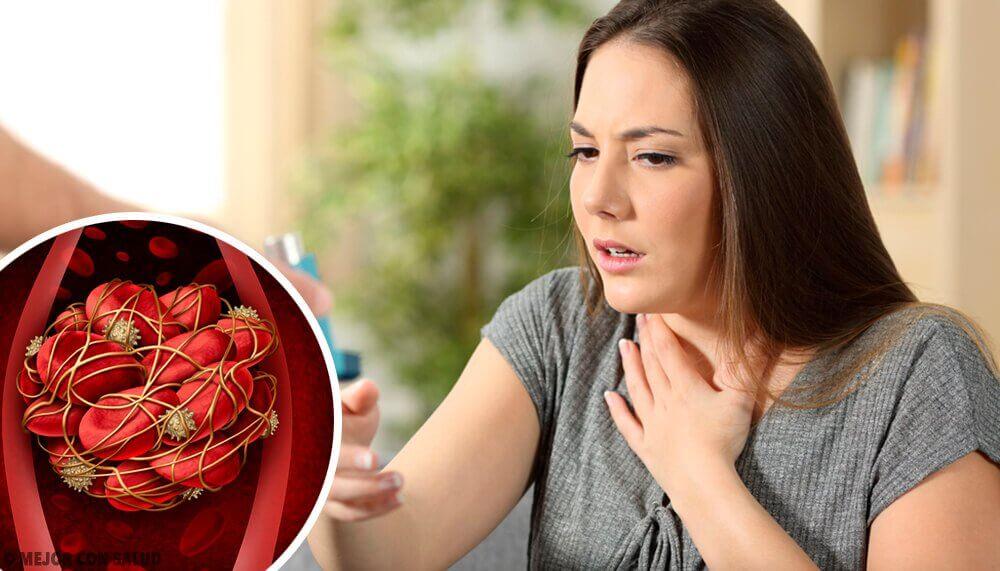 Coágulos no sangue: 8 sinais de alerta