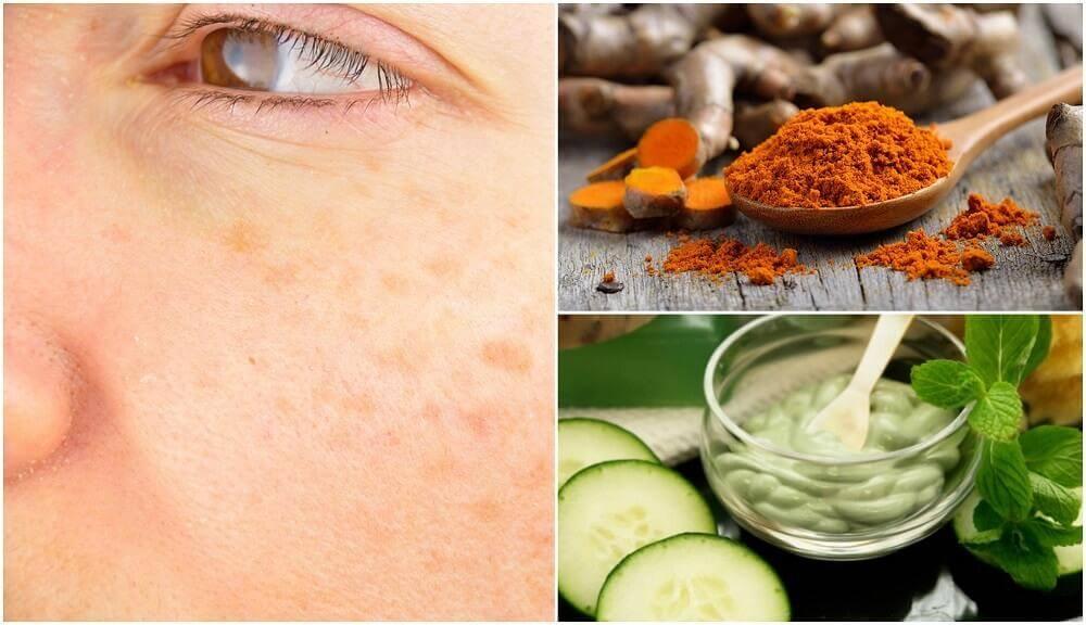 5 remédios naturais para evitar as manchas da idade
