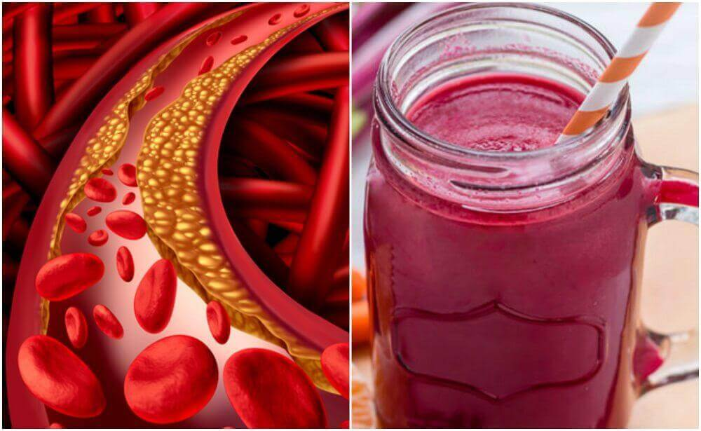 Como preparar uma bebida especial de beterraba para controlar o colesterol