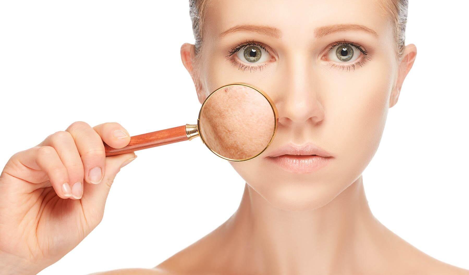 Hiperpigmentação no rosto