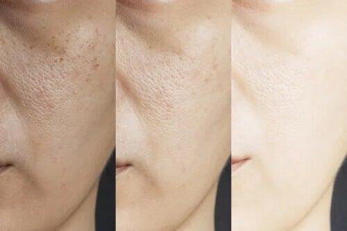 8 remédios caseiros para os poros dilatados