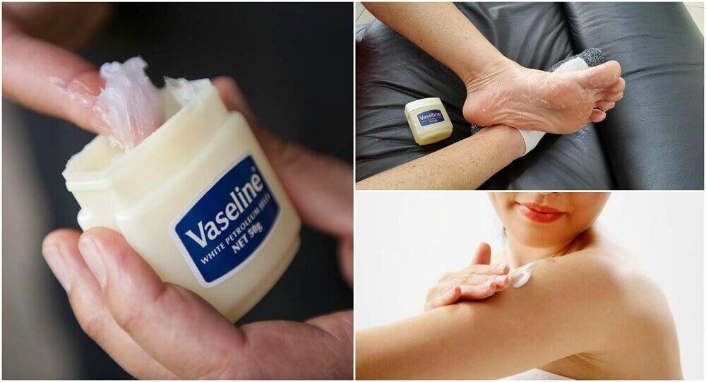 Usos medicinais da vaselina que você vai gostar de conhecer