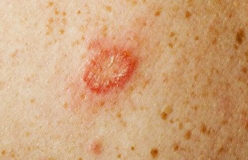 Marca de fungo na pele
