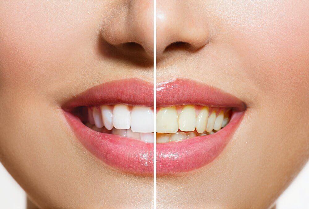 Produtos naturais que ajudarão a clarear os dentes