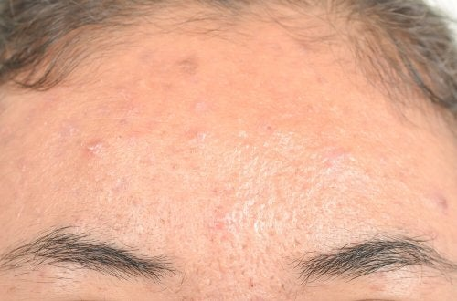 Dermatite seborreica: remédios naturais eficazes