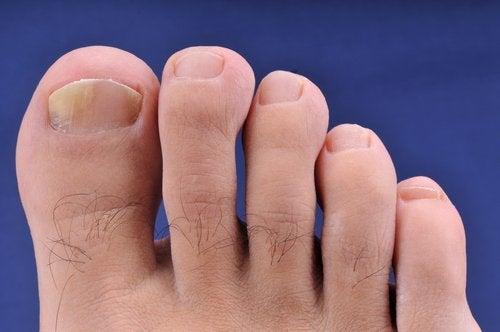 Fungo nos pés devido ao uso de chinelos de praia