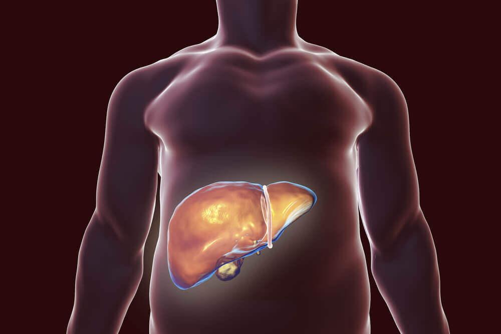 Os melhores remédios naturais para desintoxicar o fígado