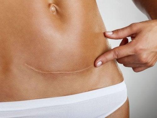Problemas de cicatrização podem indicar que o corpo não está nada bem